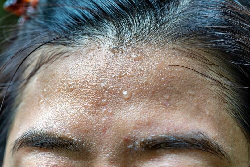 How To Stop Excessive Head Sweating | Women's Alphabet